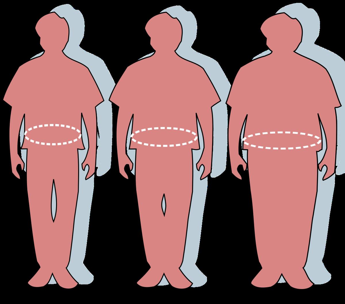 البدانة ليست قدراً على الرغم من معطياتها المنحوتة في الجينات
