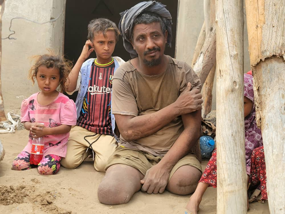 أحد ضحايا الألغام في مديرية الحالي بمحافظة الحديدة (اندبنجنت عربية - هشام الشبيلي)